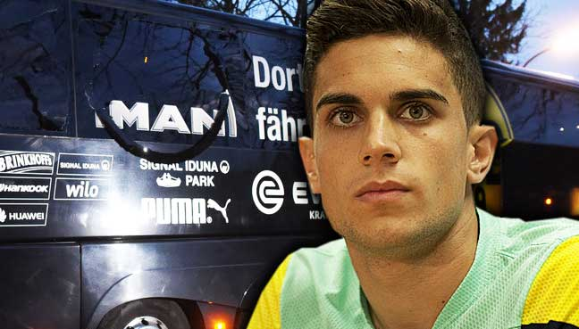 Bartra: Dortmund attack 'longest 15 mins of my life'   Free Malaysia