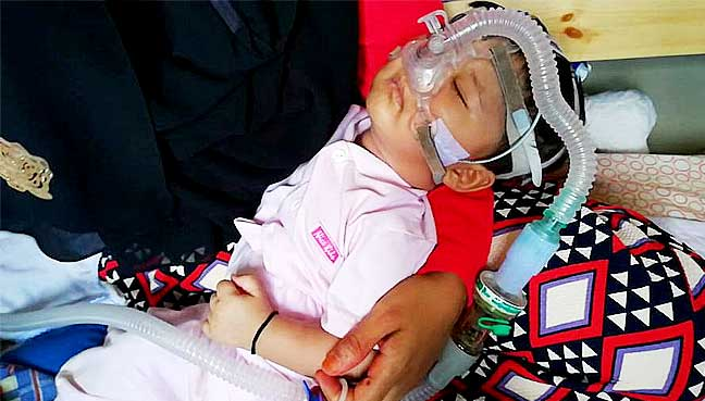 Three month old Raihan suffers from a pulmonary disease which requires him to depend on a breathing apparatus.