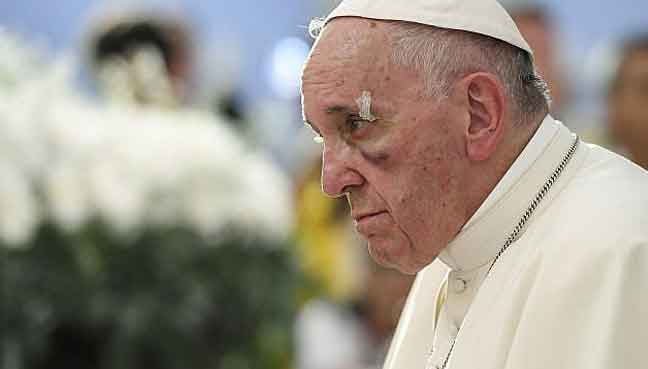 Pope suffers a black eye in Colombia mishap
