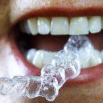 Fake-dentists-ply-brisk-trade-in-Morocco
