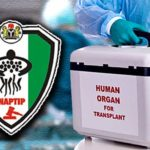 naptip_human-organ_600