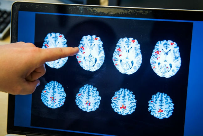 Number, severity of brain injuries raises dementia risk, study says