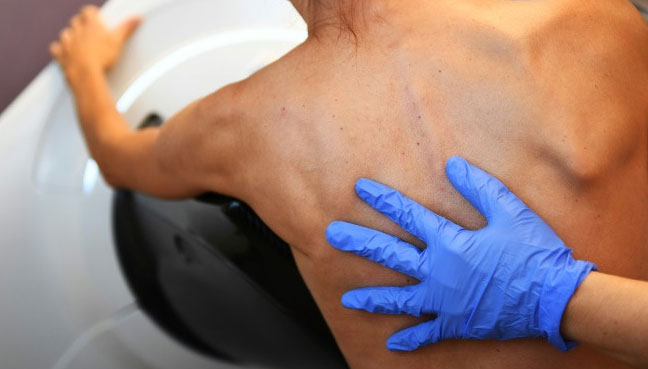 High-tech 'tattoo' could warn you that you might have cancer