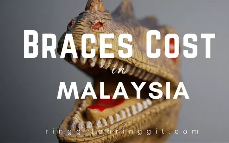 3 things to know about the cost of braces in Malaysia | Free