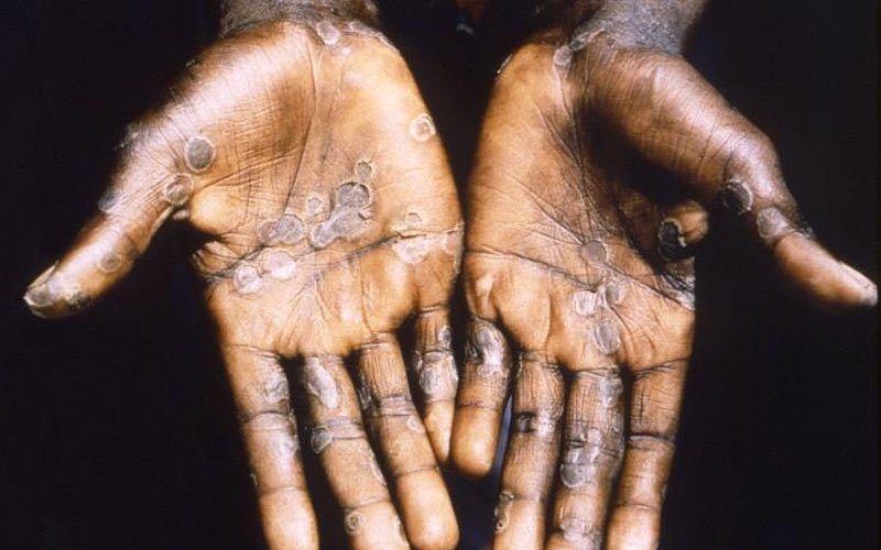 Singapore reports first case of rare monkeypox virus