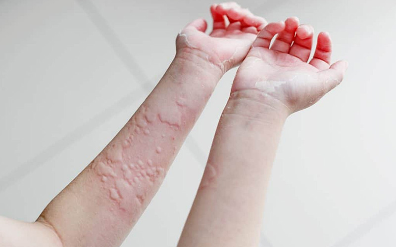 Breaking out in an itchy rash? You could have urticaria ...